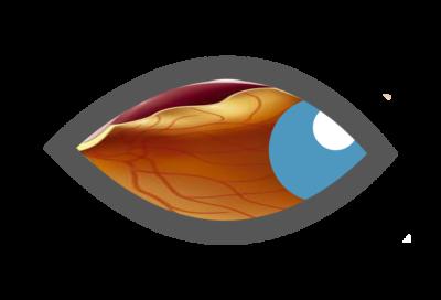 Αμφιβληστροειδής - Υαλοειδές
