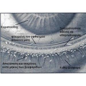 Βλεφαρίτιδα Ξηροφθαλμία